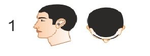Stage 1 - Norwood Scale to determine Male pattern baldness. No Treatment Required at this stage.