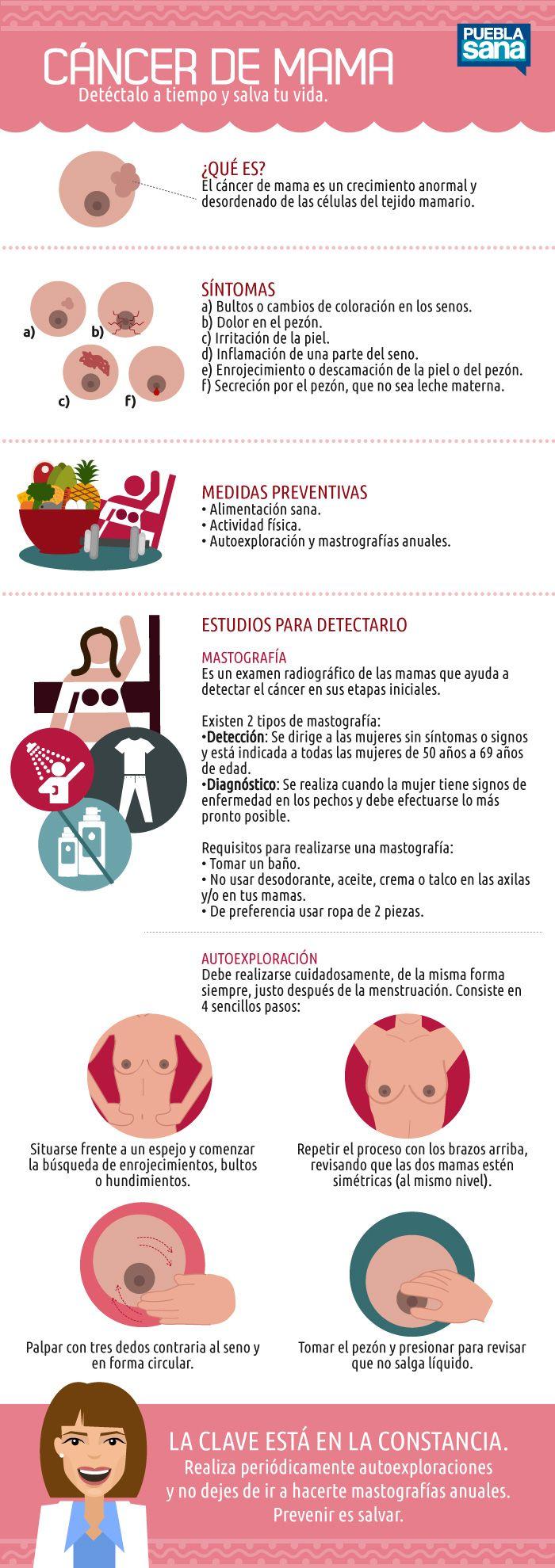 Aprende a prevenir el cáncer de mama