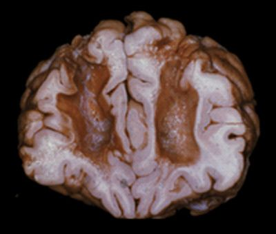 Human brain with prefrontal Lobotomy In 1936, Portuguese neurosurgeon. Egas Moniz and his associate Almeida Lima developed for the first time a surgical technique to interrupt the nerve fibers connecting the thalamus to the prefrontal cortex. They drilled holes in patients heads and destroying the tissue connecting the frontal lobes by injecting alcohol into them. The procedure brought to the United States by Drs. Walter Freeman , whom changed the name from leukotomy to lobotomy.