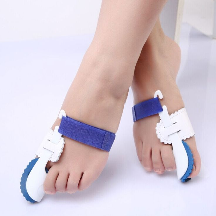 APTOCO 1Pair Feet Care Bunion Splint Corrector Hallux Valgus Orthotic Toe Separator Toes Cloven device Hallux Valgus Orthosis #Affiliate
