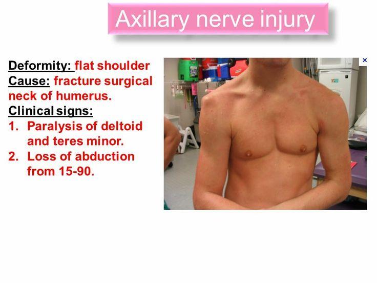 Axillary nerve block anatomy