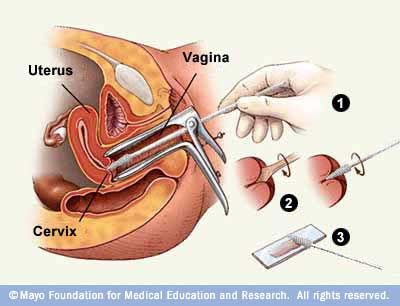 Overview of Pap smear.