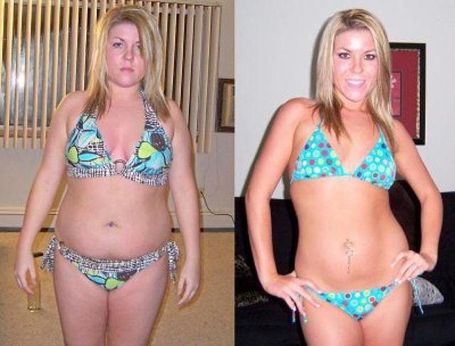 Кислота после похудения