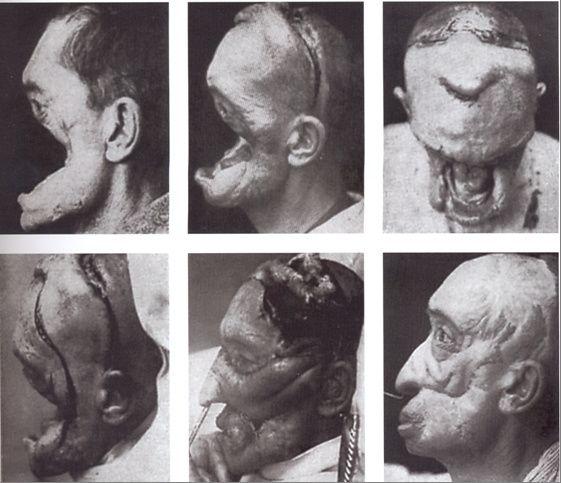 Body Modification: Lust am Horror-Krper - SPIEGEL ONLINE