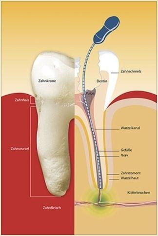 Traitement de canal ou Traitement endodontique http://univers-dentaire.net/traitement-de-canal/
