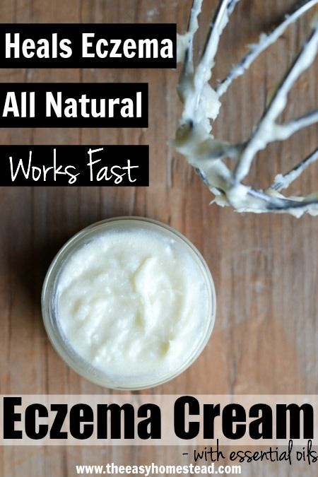 Heal your eczema naturally! Check out this easy, diy, whipped homemade eczema cream- made with essential oils. Poof- be gone eczema!
