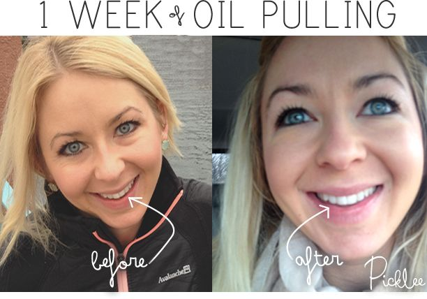 One of my favorite benefits of oil pulling- Intensely whiter teeth after only 4 days! MANY more amazing findings in post.
