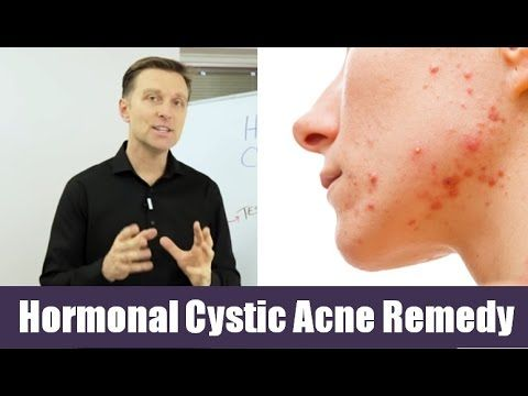 In this video, Dr. Berg describes a remedy that can be used if you have hormonal cystic acne.   https://www.drberg.com/blog/body-conditions/best-remedy-for-hormonal-cystic-acne