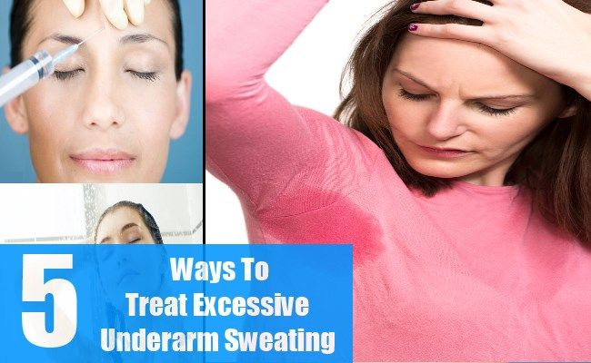 Top 5 Ways To Treat Excessive Underarm Sweating