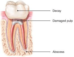 Patients typically need a root canal when there is inflammation or infection in the roots of a tooth. During root canal treatment, an endodontist who specializes in such treatment carefully removes the pulp inside the tooth, cleans, disinfects and shapes the root canals, and places a filling to seal the space.