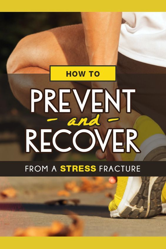 How to prevent stress fractures or return to running after having an injury