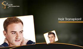 You might be thinking that how #hair #transplant #treatment is #cost #effective but if you will #compare the cost with other treatments then you will come to know that although they are not expensive but they are #never #ending #process. Preferring the other #temporary #treatments for longer term can exceed your #hair #transplant# cost.