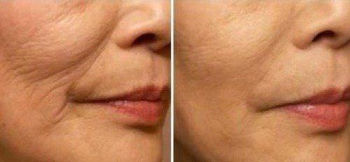 Usta otoczone są wrażliwą, cienką i narażoną na zmarszczkizwarstwą skóry.To właśnie na jej obszarze widać pierwsze oznaki starzenia się.