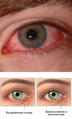 Красные глаза: причины и лечение