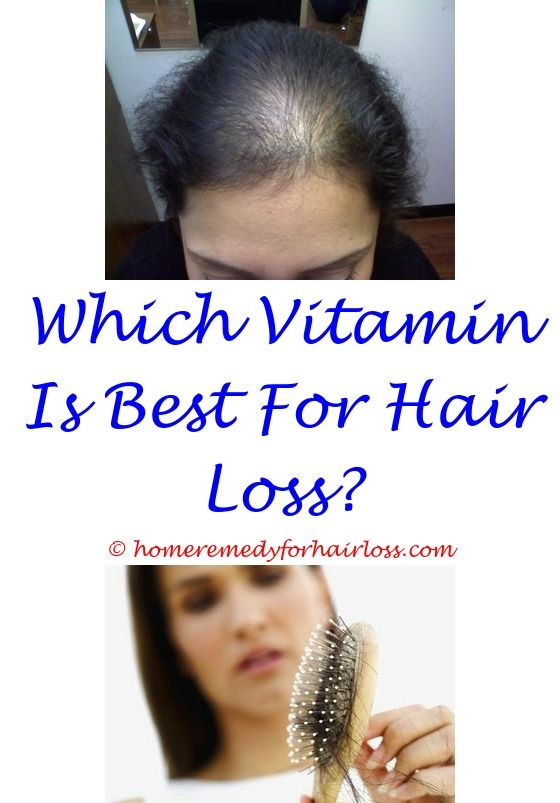 kitten hair loss around mouth - doctors who treat hair loss.different infection on scalp that causes hair loss doctor yale medical hair loss propecia does shaving your head help hair loss 9247753669