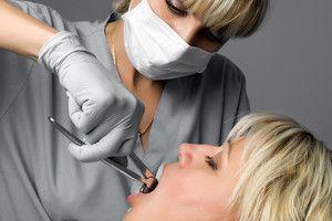 Extraction dentaire - alternativesante.fr