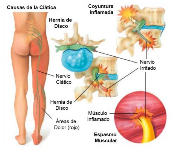 Para un quiropráctico, una de las afecciones más comunes que ve en su consulta es la ciática. Este dolor de espalda que llega hasta la pierna es muy común en nuestra sociedad. ¿Qué causa exactamente la ciática y cómo podemos deshacernos de ella? Hay que empezar por comprender el significado de la palabra ciática. Lo que su dolor de ciática realmente significa La ciática es un término que describe los síntomas de dolor que se originan en la zona lumbar y se extienden a través de la nalga, el…