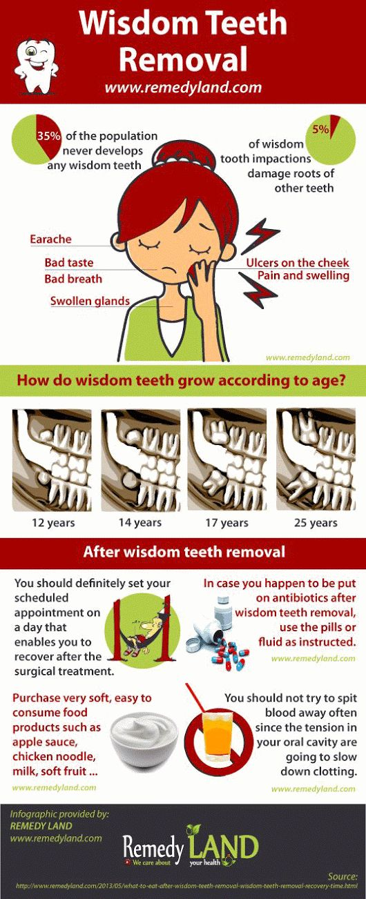 http://www.remedyland.com/2013/05/what-to-eat-after-wisdom-teeth-removal-wisdom-teeth-removal-recovery-time.html What to eat after Wisdom Teeth removal... - Igor Adamovic - Google+