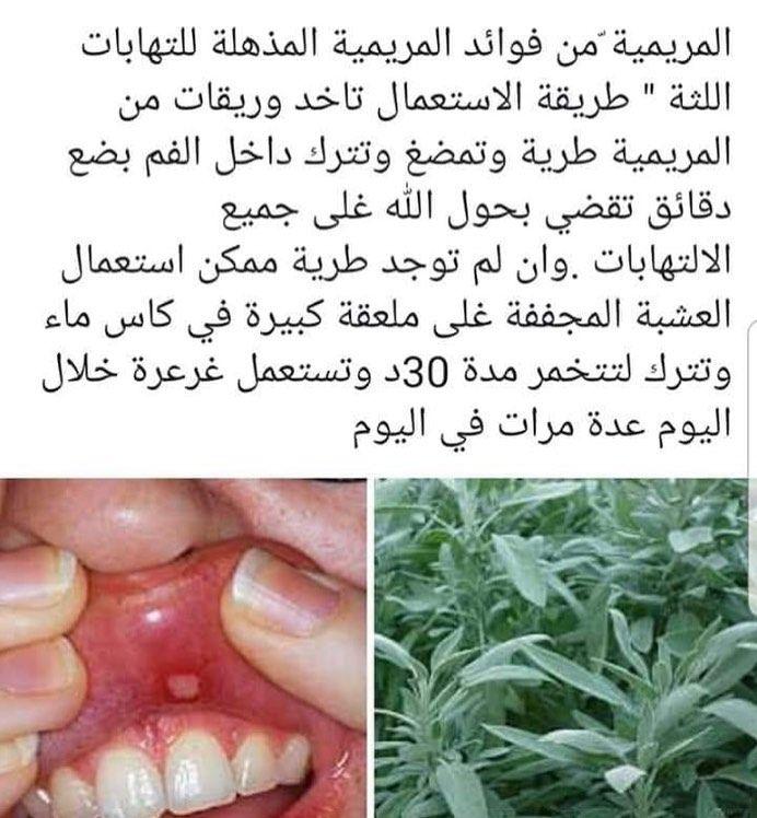 علاج قرح الفم بالمرمريه Healthy Tips Instagram Posts Instagram