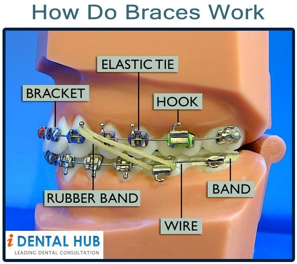 When undergoing braces, we often think, how do braces work or how the braces move the teeth. Basically teeth movement happens due to wires in the brackets. the wires apply force and pull the teeth to the desired location determined by the Orthodontist. The force of wires is regularly adjusted by orthodontist in follow up visits to move the teeth.