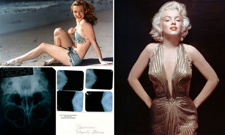 Proof that Marilyn Monroe DID have a chin implant: X-rays and medical notes that reveal late star's cosmetic surgery go up for auction. The set of six X-rays and a file of doctors' notes that offer a partial medical history of the Gentlemen Prefer Blondes actress from 1950 to 1962, are expected to fetch between $15,000 and $30,000 at auction on November 9 and 10, said Julien's Auctions in Beverly Hills, California.