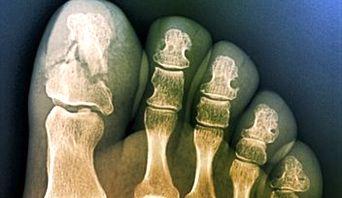 Broken toe Care