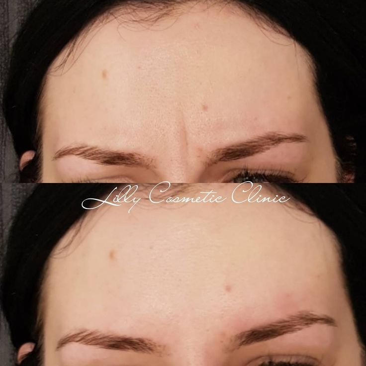 Smooth your frown lines using antiwrinkle injections today! ��️In the case of this beauty, prevention is key. She once had a permanent static line between her brows. But since having regular antiwrinkle injections, the line has faded on it's own. She also only needs to have her injections every 6 months or so due to regular treatments. ��Anti-wrinkle injections definately do pay themselves off over time! By increasing self confidence �� ��Don't forget that looking after your skin is another…