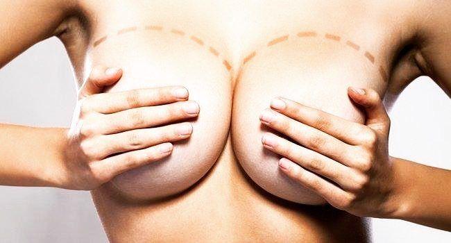 Mamaplastia de aumento... que nome difícil mas esta é mais conhecida popularmente como cirurgia do silicone.  Está cirurgia possibilita a mulheres que têm suas mamas pequenas a aumentarem não só as suas mamas mas também a autoestima.  Escolha sempre um cirurgião plástico especialista da Sociedade Brasileira de Cirurgia Plástica. Fico a disposição para qualquer dúvida nos comentários a seguir ou pelo whatsapp 21-994482221. #DrMatthewsHerdy #MembroSBCP #cirurgiaoplastico #cirurgiaplastica…