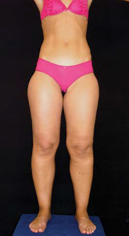 """Lipedema is a condition distinguished by the gathering of large amounts of adipose tissue, generally in the legs, and occurs almost exclusively in women patients. Women of all body types and sizes may suffer from Lipedema whether they're of a healthy weight or morbidly obese. The excess deposit of fat cells from the waist down … Continue reading """"What is Lipedema?"""""""