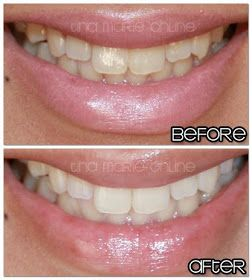 how to get rid of sensitive teeth after whitening