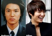 Korean Male Actors Without Plastic Surgery Celebrities Korean Plastic Surgery Transformations   Before After