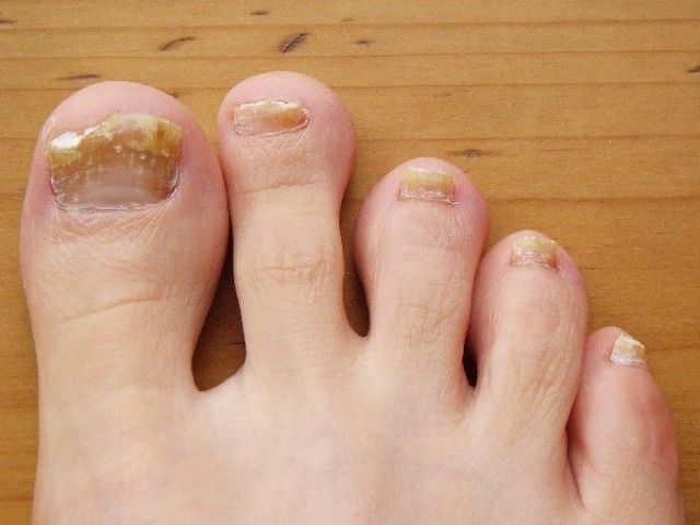 Home Remedies for Toenail Fungus: image of fungal infection