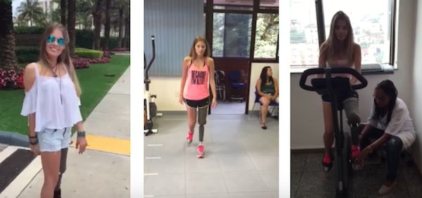 Inspiring Brazilian Model Is Labelled Warrior After Losing Leg To Drunk Driver