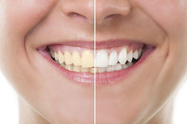 How To Whiten Yellow Teeth in One Day cardiffdentistry.com.au