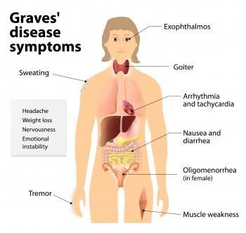 Graves' disease is an autoimmune disease in which the patient's own immune system attacks the thyroid gland, causing it to produce too much thyroid hormones.