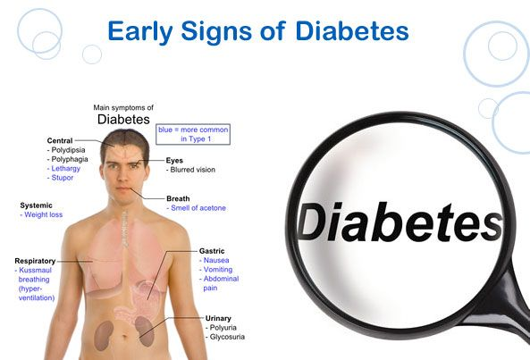 Want to know Type 2 Diabetes Symptoms and Signs? This article lists all the Symptoms and Signs of Type 2 Diabetes. Read it now.
