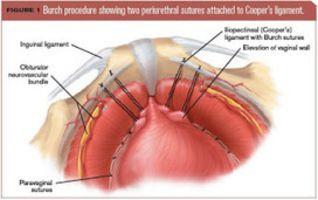 25 Best Ideas About Laparoscopic Surgery On Pinterest