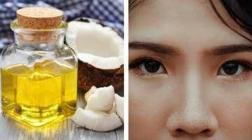 How To Use Coconut Oil For Removing Blackheads #co…