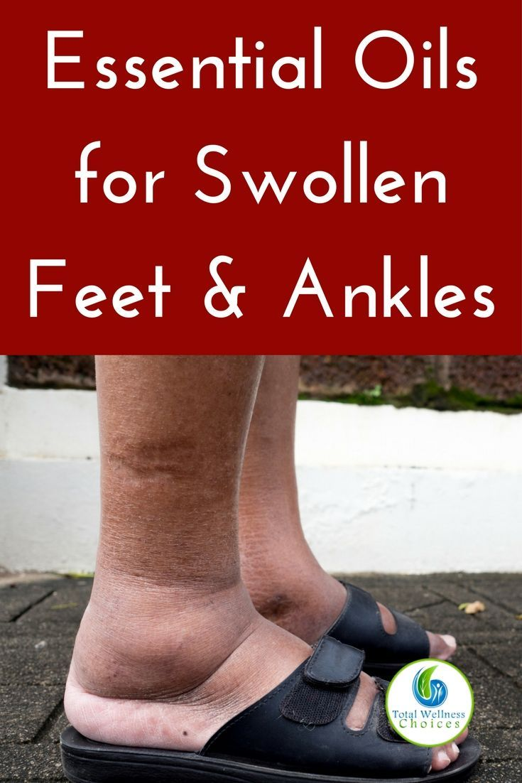 Best essential oils for swollen ankles and feet that can help reduce swelling in your feet or ankles! #essentialoils #naturalremedies #swollenfeet #swollenanklesremedy via @wellnesscarol