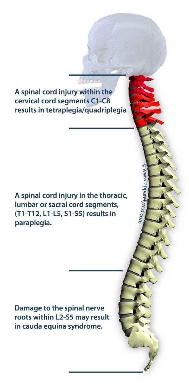 16 best easy meal ideas for quadriplegics images on ... broken neck diagram parts of the neck diagram
