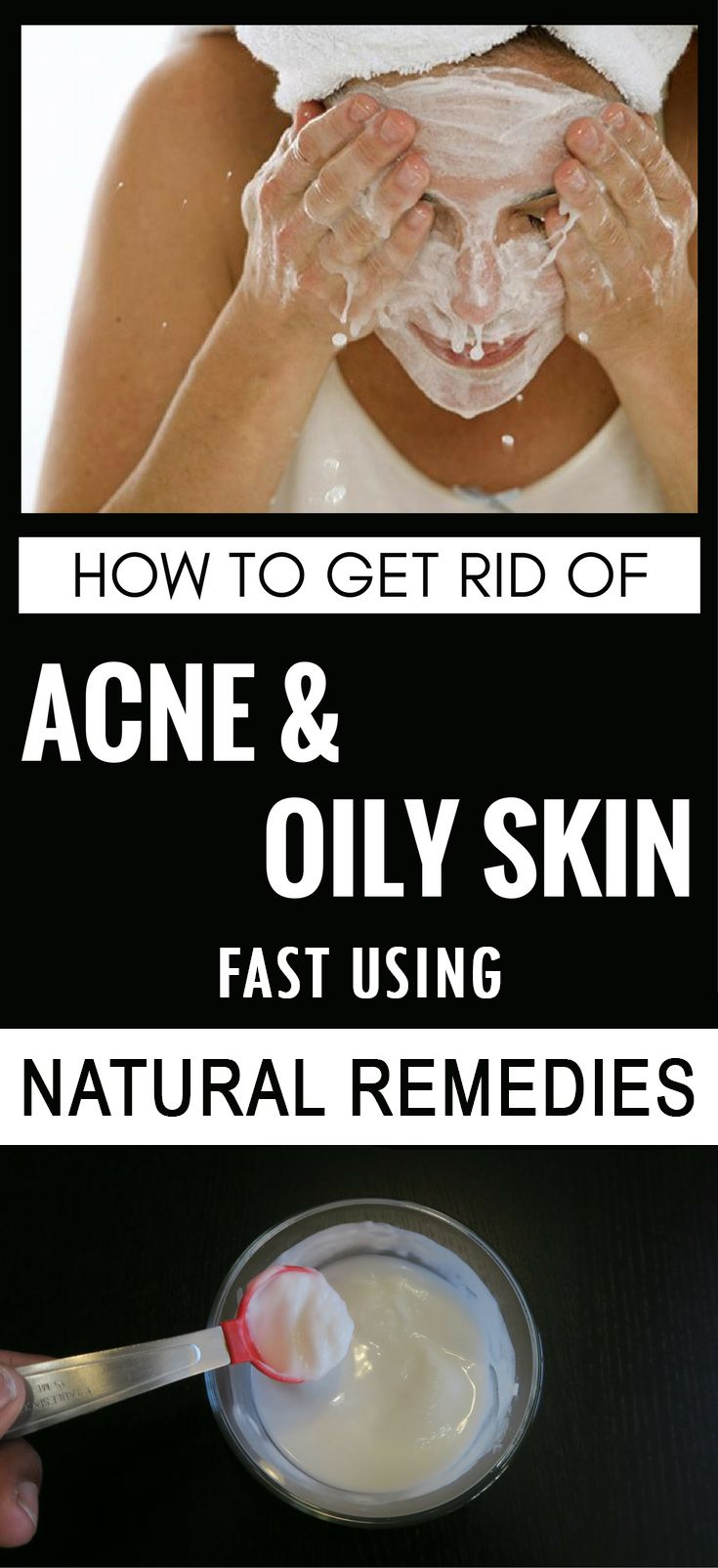 how to get rid of oily skin fast