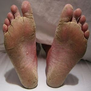 Natural Cures For Foot Fungus...