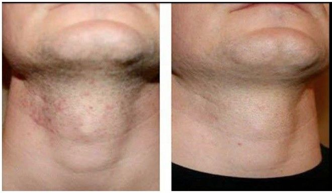 How To Get Rid Of Razor Bumps Fast At Home