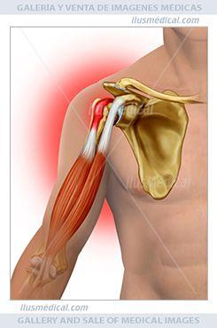 Tendinitis o bursitis del hombro. Ilustración anatómica del hombro en la que se puede ver la ...
