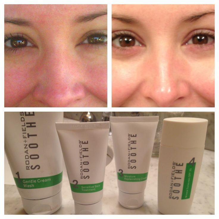 Top 10 Articles on Sensitive Skin: Psoriasis, Eczema, Rosacea & More 2