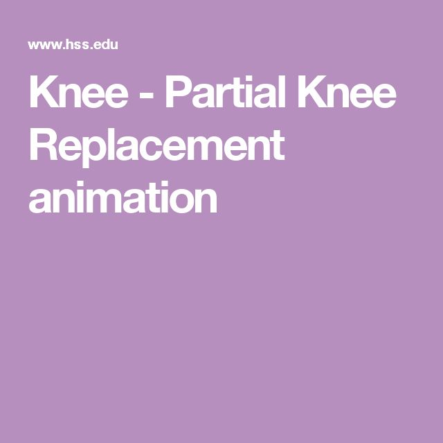 Knee - Partial Knee Replacement animation