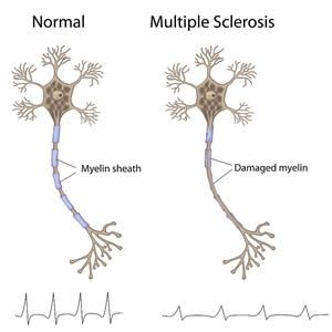 MS - The term multiple sclerosis refers to the distinctive areas of scar tissue (sclerosis or plaques) that are visible in the white matter of people who have MS. Plaques can be as small as a pinhead or as large as the size of a golf ball. Doctors can see these areas by examining the brain and spinal cord using a type of brain scan called magnetic resonance imaging (MRI).