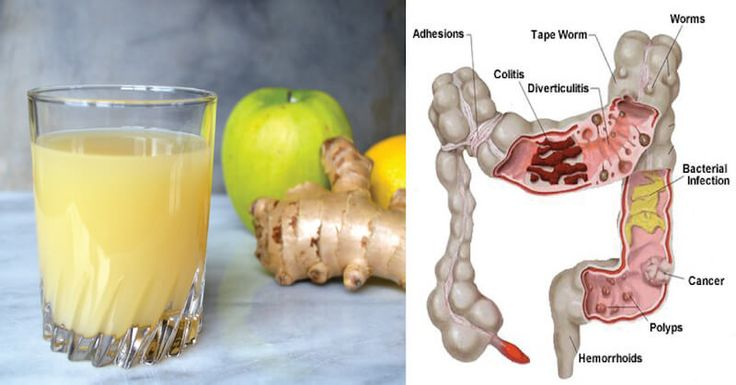 Release Pounds of Toxins From Your Body with this 3-Ingredient Apple Ginger Lemon Colon Cleanse Juice