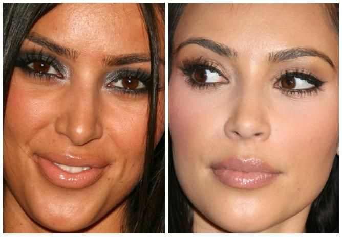 Before and After. Nose Job Surgery on Pinterest | Nose Jobs ...