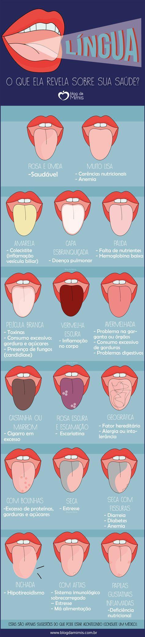 Língua: o que ela revela sobre sua saúde - Blog da Mimis #blogdamimis #língua #saúde #alimentação #dieta
